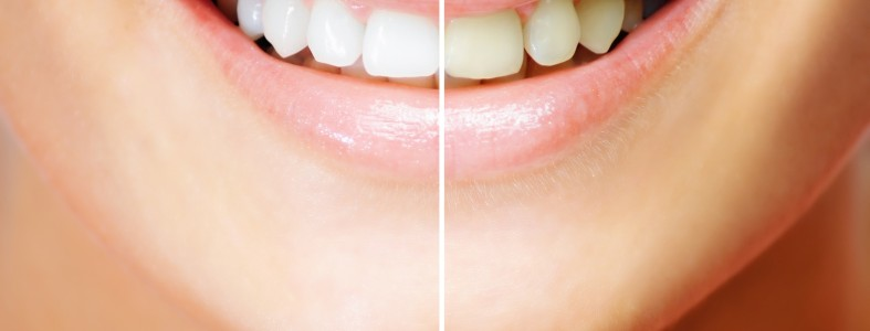 отбеливание зубов вопросы